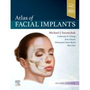 Atlas of Facial Implants