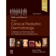 Hurwitz Clinical Pediatric Dermatology: A Textbook of Skin Disorders of Childhood & Adolescence