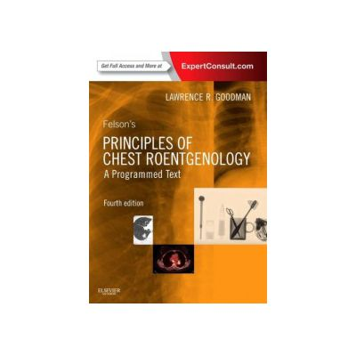 felsons priciples of chest roentgenology a programmed text pdf