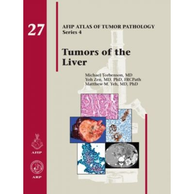 Tumors of the Liver (AFIP Atlas of Tumor Pathology, Series 4, Number 27)