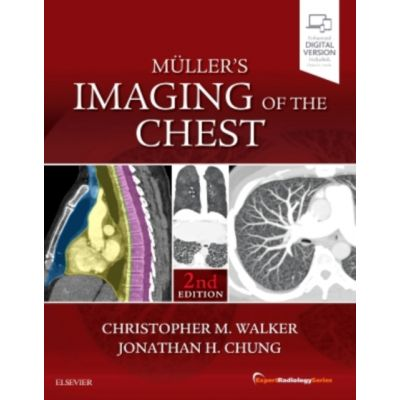 Muller's Imaging of the Chest (Expert Radiology)