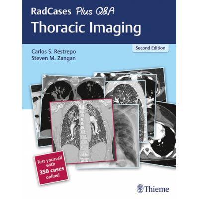 RadCases Plus Q&A: Thoracic Imaging