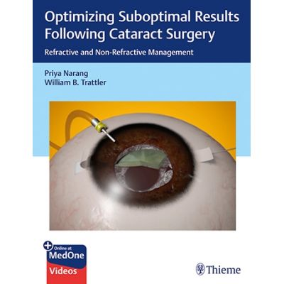 Optimizing Suboptimal Results Following Cataract Surgery: Refractive and Non-Refractive Management