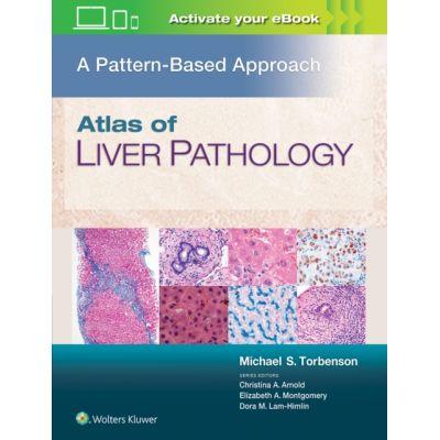 Atlas of Liver Pathology: A Pattern-Based Approach